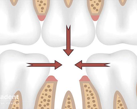 Протезирование зубов виды и цены