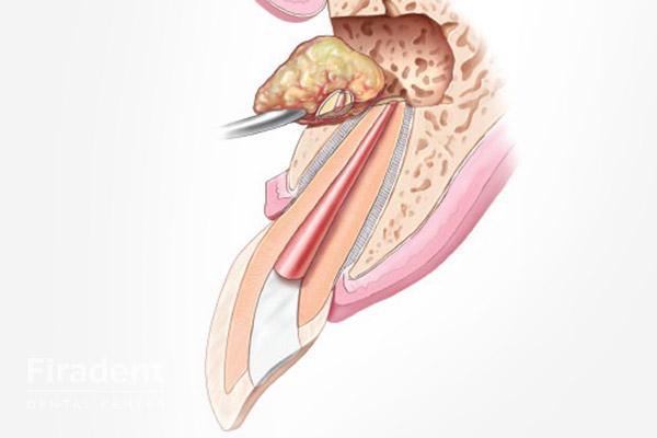 гранулема цистэктомия
