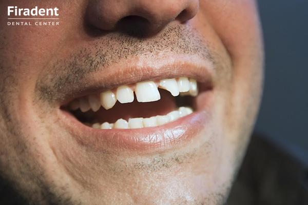 поломанный зуб
