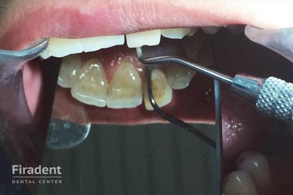 удаление нерва в переднем зубе
