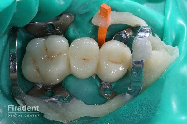 удаление нерва в зубе этап 1